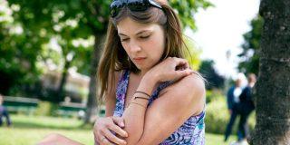 4 enostavne rešitve, kako se ubraniti pred komarji, in kako ublažiti pik 1