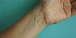 črte na notranji strani dlani